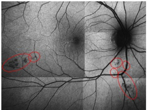 eye test for Alzheimer detection